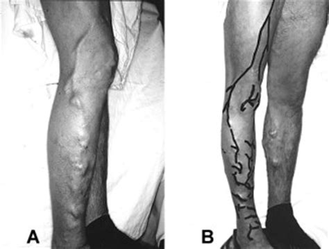 Surgical treatment of venous malformations in Klippel